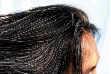 白髪の原因は栄養不足それともストレス?食べ物、サプリ、シャンプーで治るのか。