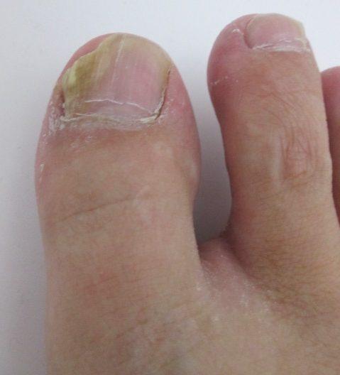 なかなか治らない白癬菌・水虫を根気よく治す方法